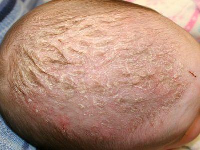шелушение кожи у ребенка