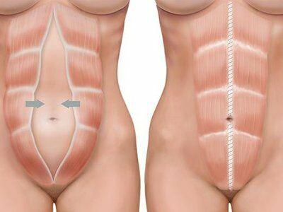 Расхождение мышц живота после родов