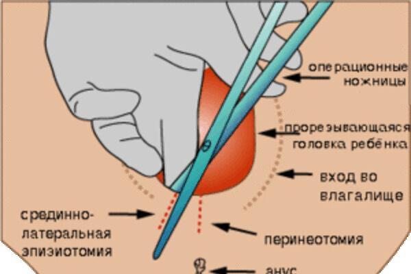 перинеотомия и эпизиотомия разница