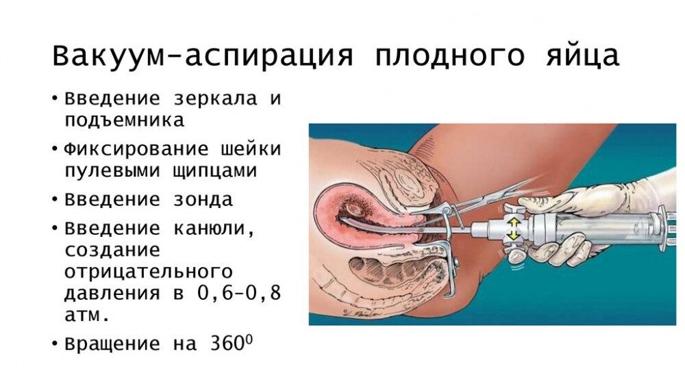 аборт после кесарева сечения