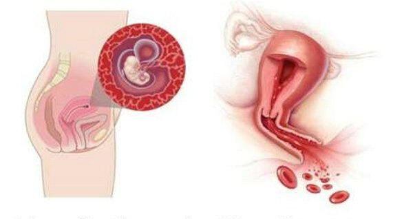 Аборт при первой беременности: опасность и последствия для организма женщины,осложнения