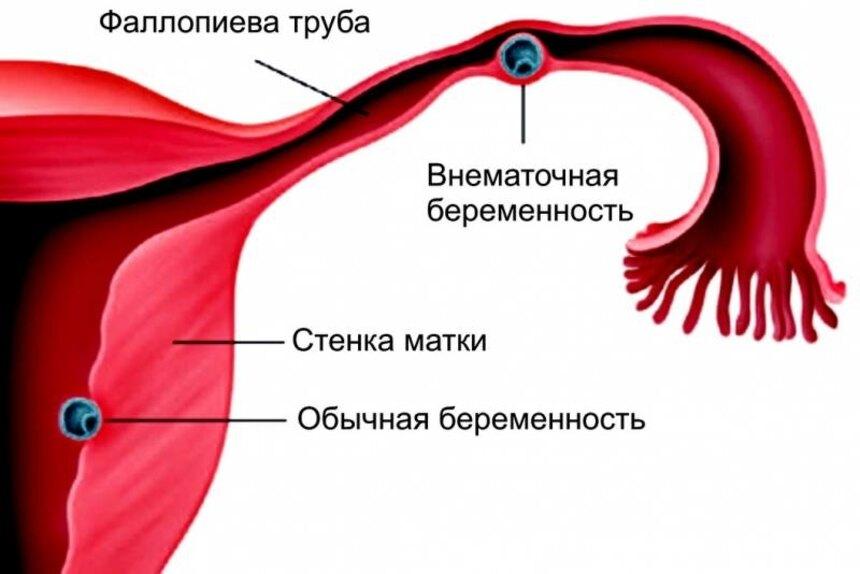 аборт при внематочной беременности (главный ключ)