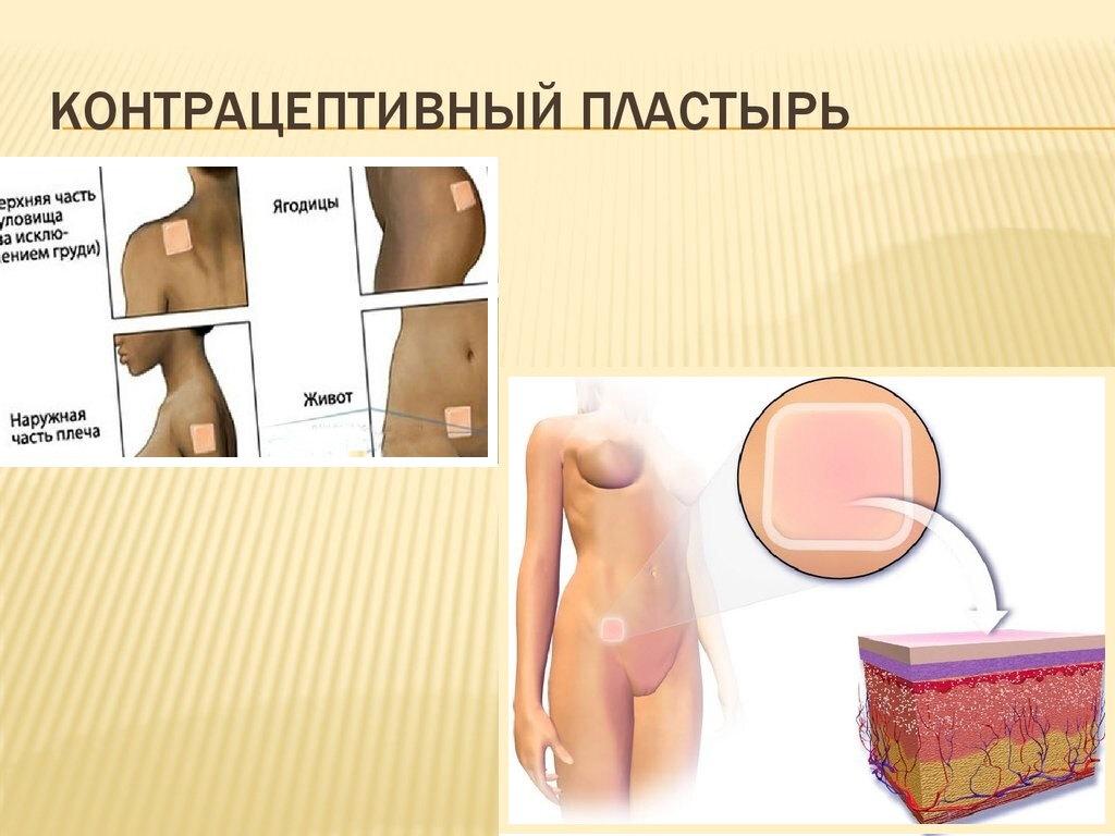 противозачаточные таблетки после 35 лет / противозачаточные таблетки после 35