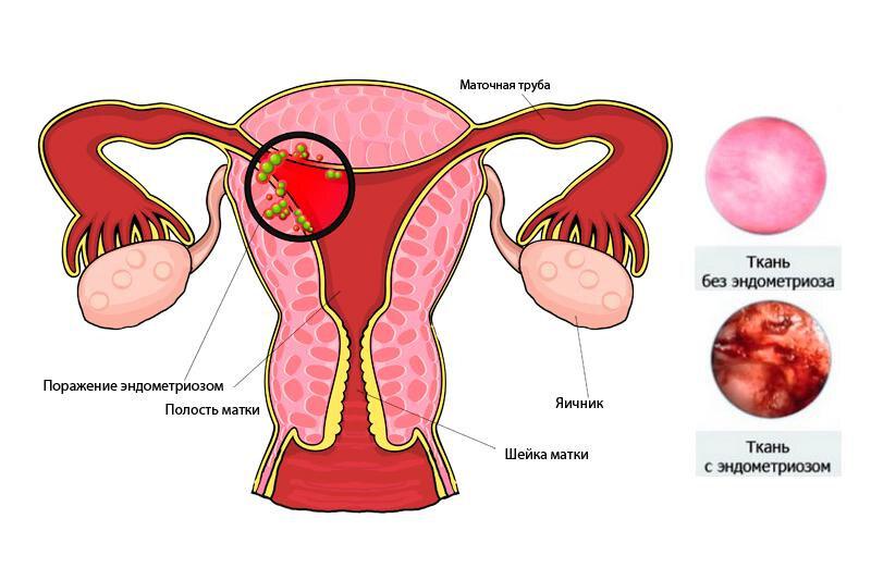 контрацепция при эндометриозе