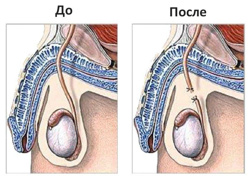 вазэктомия обратима или нет