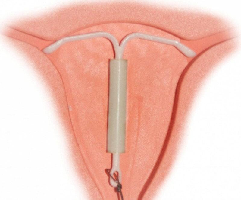 спираль противозачаточная