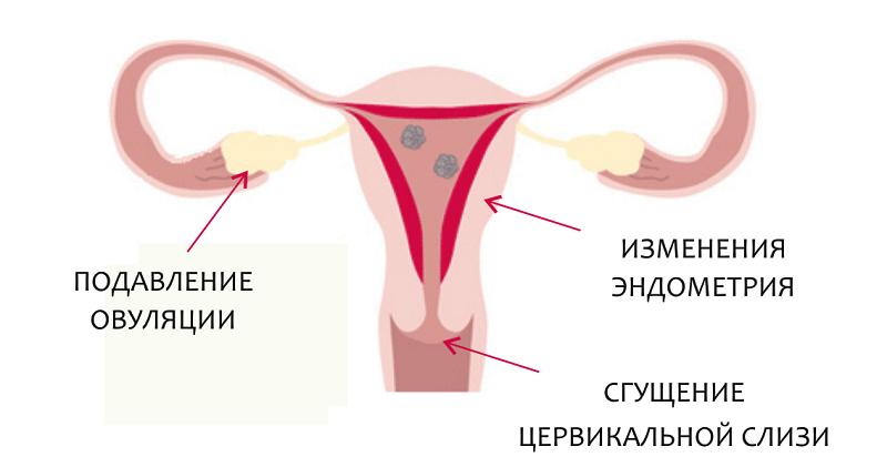 Гормональные контрацептивы: вред или польза?