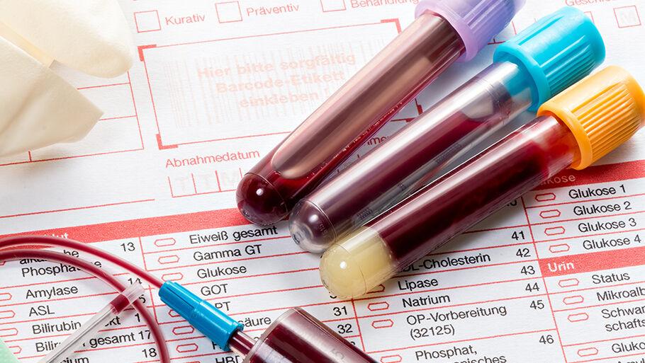 Правила сдачи анализов крови и мочи на ХГЧ
