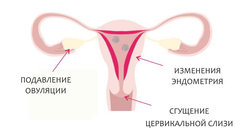 Гормональные таблетки: плюсы и минусы оральной контрацепции