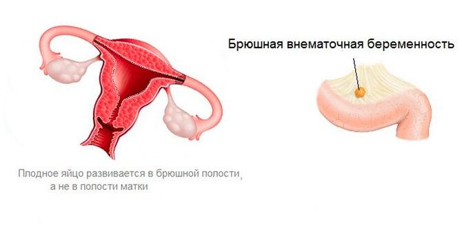 Брюшная внематочная беременность