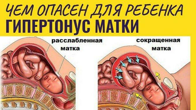 Гипертонус матки
