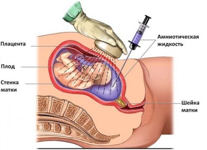 Процедура амниоцентёза