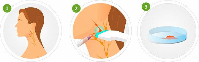 Пункция лимфатического узла