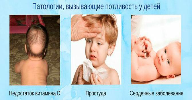 Патологии вызывающие потливость у детей