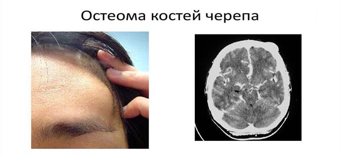 Остеома костей черепа