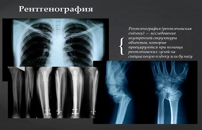 Что такое рентген