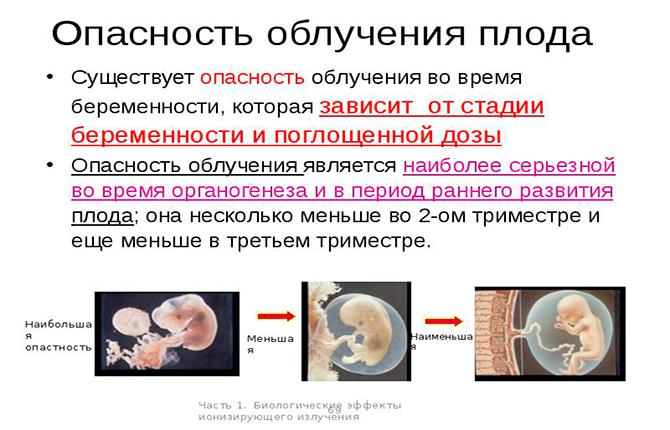 Опасность облучения плода при рентгене