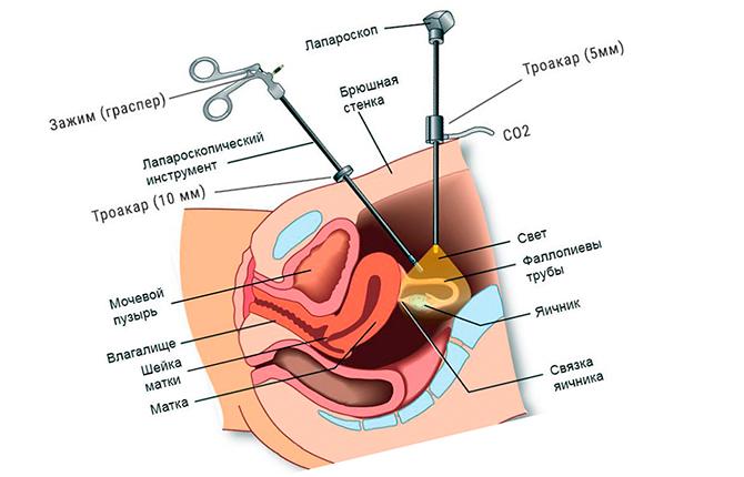 Проведение операции лапароскопии