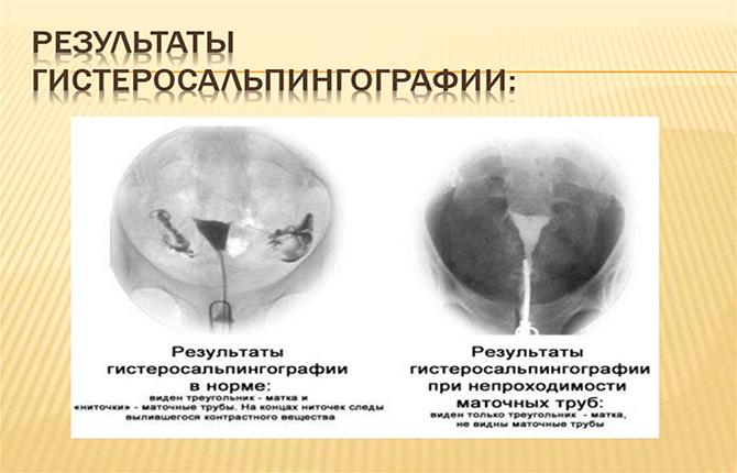 Результаты гистеросальпингографии