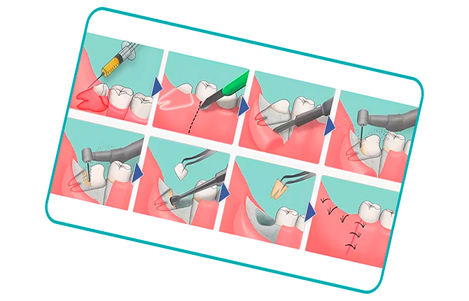 Способы удаления зуба мудрости при беременности