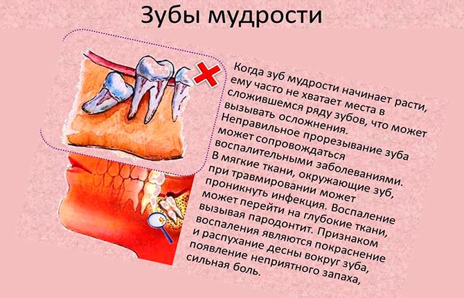 Как удаляют зубы мудрости