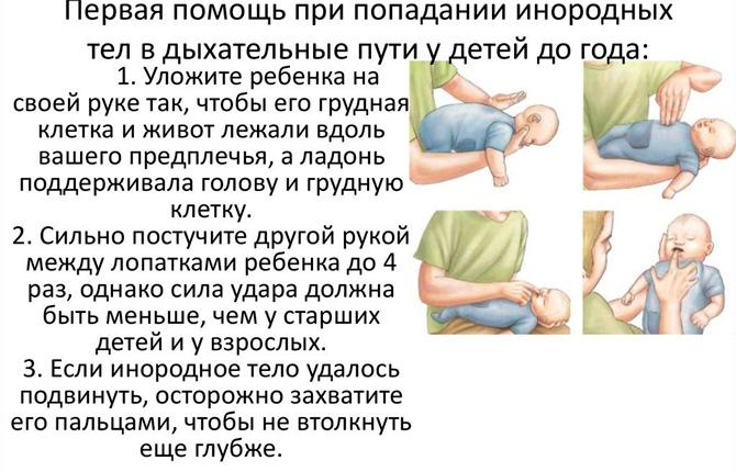 Первая помощь если ребенок подавился